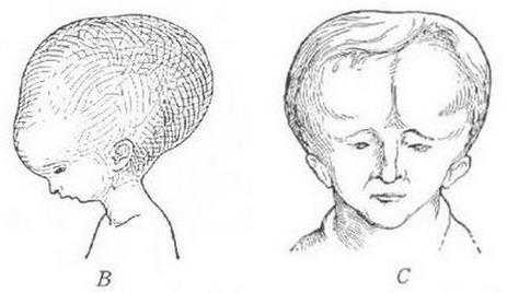 A drawing depicting melon head syndrome. People with over large heads.